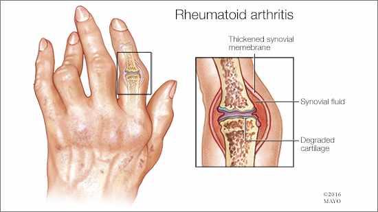 rheumatoid-16x9